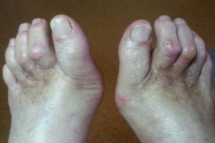 1b - nohy po ošetrení