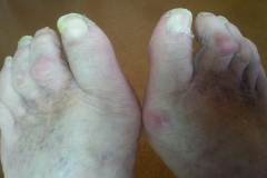 1a - nohy pred ošetrením