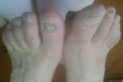3a - nohy pred ošetrením