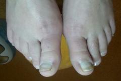 3b - nohy po ošetrení