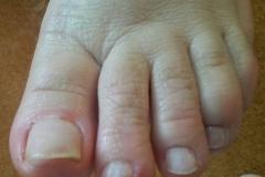 2b - nohy po ošetrení